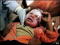 Injured baghdad baby